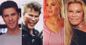 Filmsztárok, akiket brutálisan elcsúfítottak a plasztikai beavatkozások