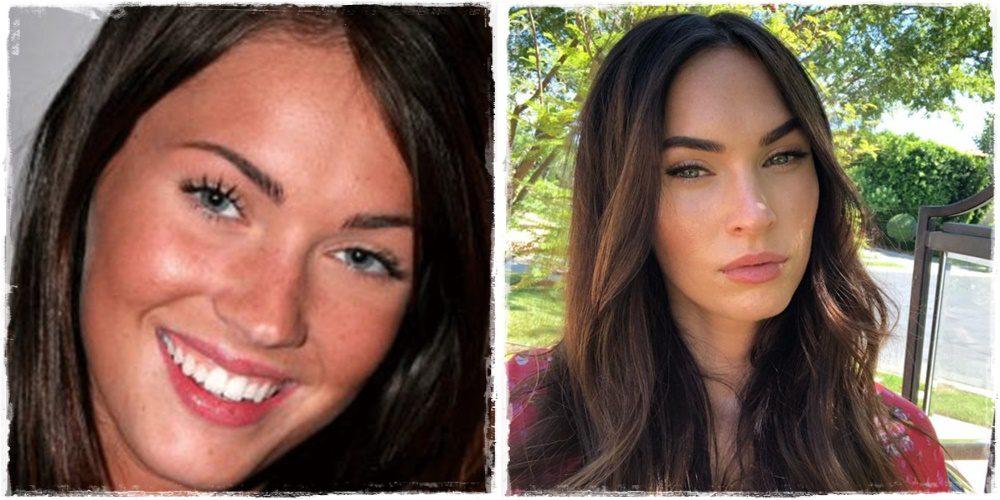 Emlékszel még, hogyan nézett ki Megan Fox a plasztikai műtétek előtt?