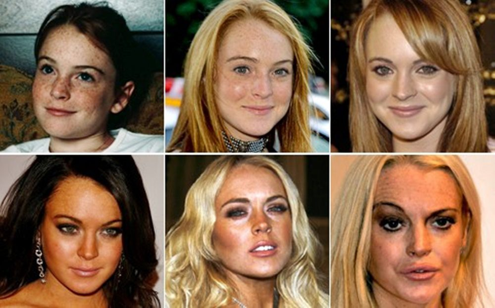 A 34 éves Lindsay Lohan mára teljesen felismerhetetlenné vált