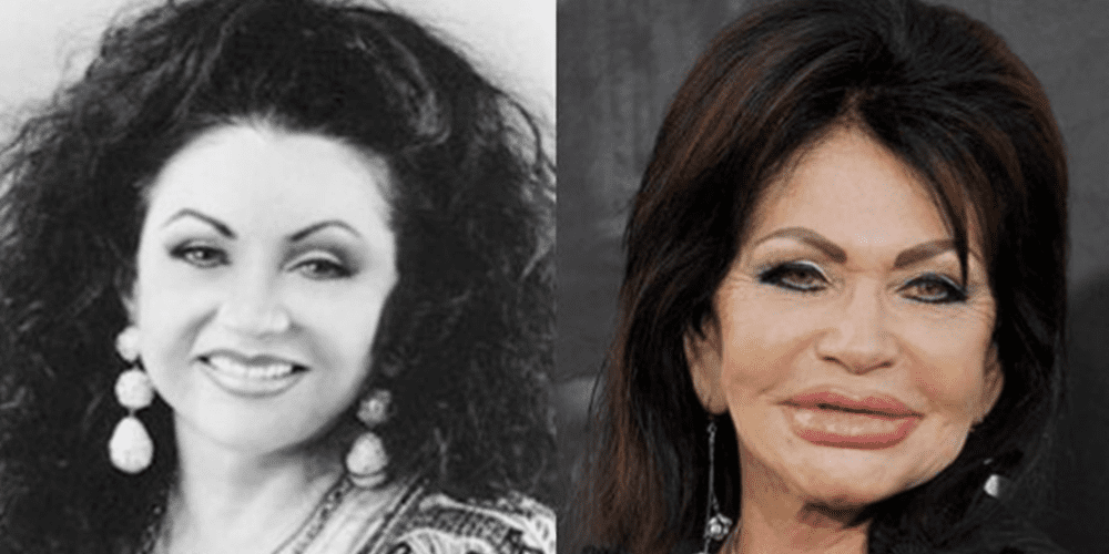 Miből mi lett - Sylvester Stallone és Jackie Stallone is a plasztikai műtétek áldozatai lettek