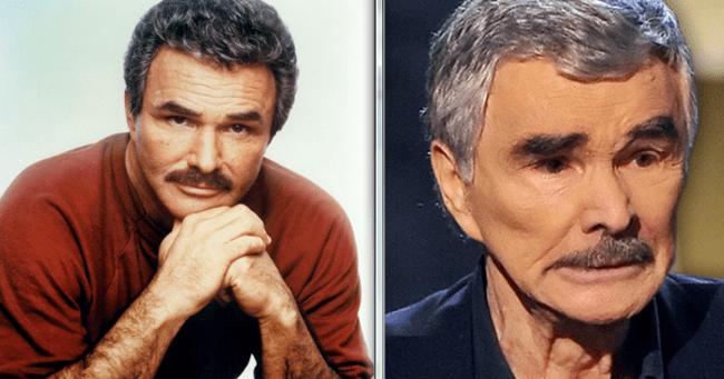 Burt Reynolds is túlzásba vitte a plasztikázást