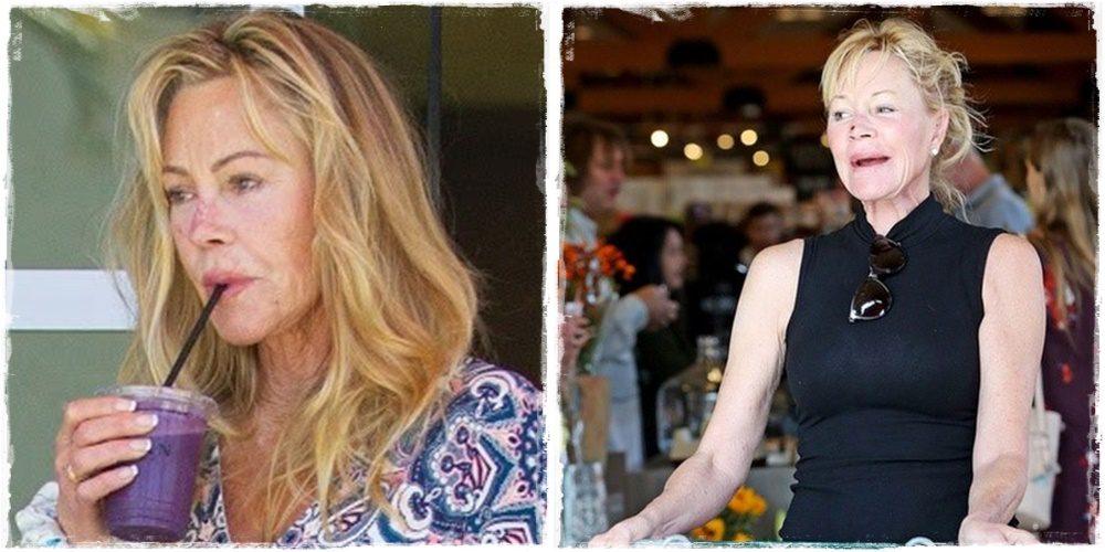 Melanie Griffith újabb áldozata annak, amikor a plasztikai beavatkozások rosszul sülnek el
