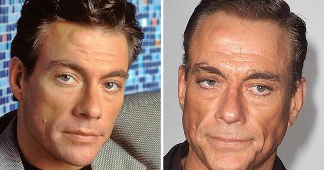 Jean Claude Van Damme, akivel borzalmasan elbántak a plasztikai sebészek
