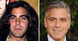George Clooney kampányol a plasztikáztatás ellen, ennek ellenére maga is kés alá feküdt