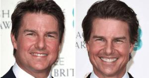 Megdöbbensz Tom Cruise plasztika előtti és utáni képén!