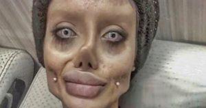 Döbbenet! Angelina Jolie szeretett volna lenni, élő zombivá vált a sok plasztikától